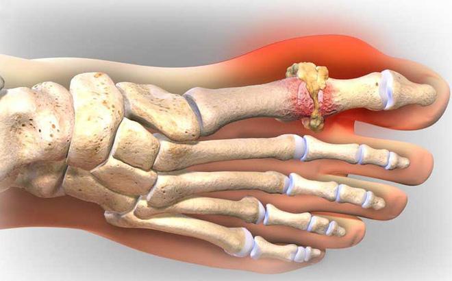 Lời khuyên về chế độ ăn uống cho những người mắc bệnh Gout 1